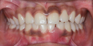 Agressiivne parodontiit