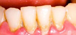 Mis on hambakatt