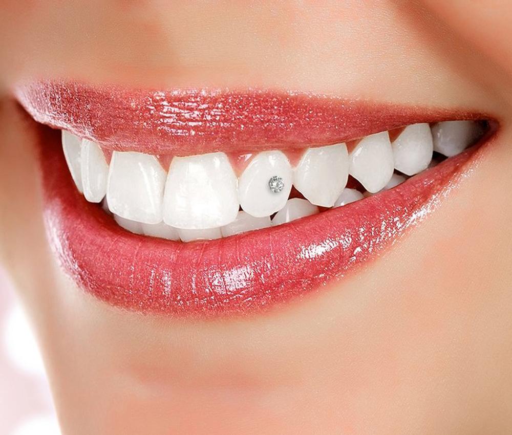 Hambakaunistused