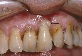Kaugele arenenud parodontiit