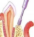 Kirurgiline parodontiidi ravi