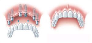 Hambaimplantaadid kogu ülemise või alumise lõualuu fikseeritud hambumuse taastamiseks