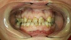 Hambakroonid
