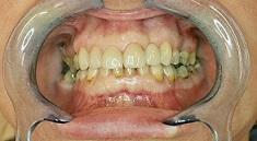 Hambakroonid paigaldatud