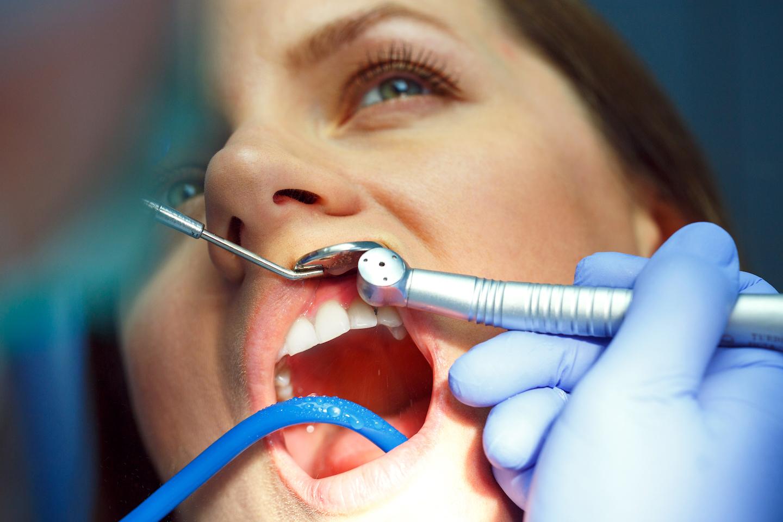 Kuidas tekib hambakivi