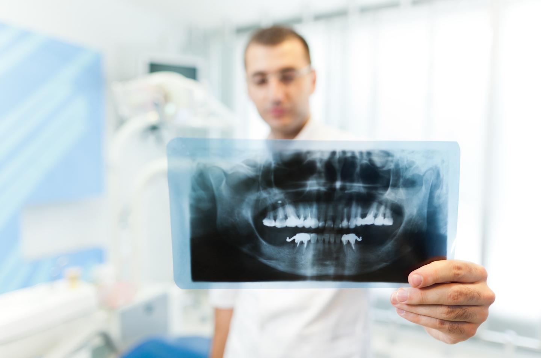 Tundlikud hambad, mis on selle põhjuseks