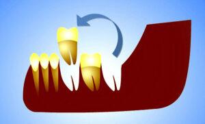 Трансплантация зубов