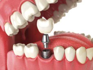 Hambaimplantaatide eelised