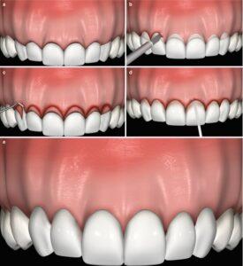 Kirurgiline hambakrooni pikendus