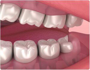 Suuõõne kirurgia